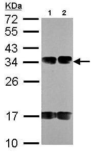 Western blot - FUS2 antibody (ab96844)