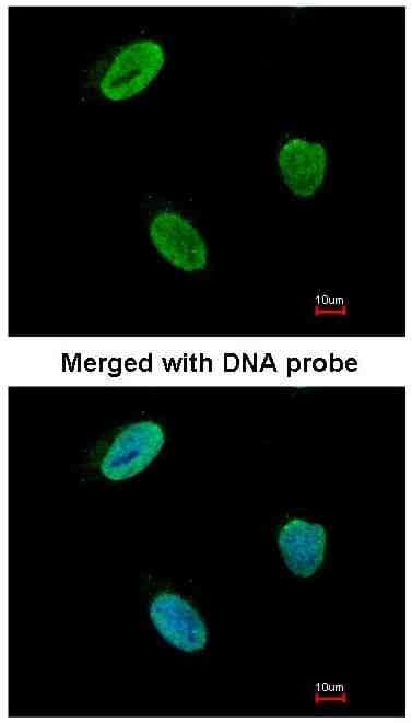 Immunocytochemistry/ Immunofluorescence - Rad9 antibody (ab96862)