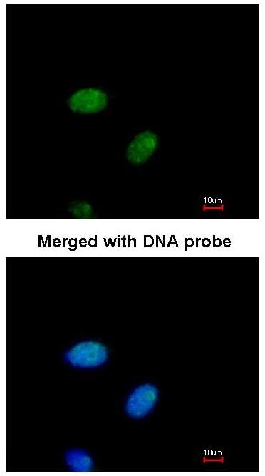 Immunocytochemistry/ Immunofluorescence - E2F1 antibody (ab96864)