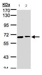 Western blot - SENP2 antibody (ab96865)