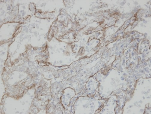 Immunohistochemistry (Formalin/PFA-fixed paraffin-embedded sections) - CLIC3 antibody (ab97289)