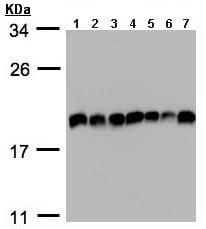 Western blot - eIF5A2 antibody (ab97314)