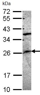 Western blot - GRAP antibody (ab97344)