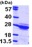 SDS-PAGE - Cytoglobin protein (ab97347)