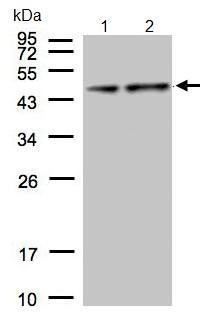 Western blot - Pyruvate Dehydrogenase E1-alpha subunit antibody (ab97352)