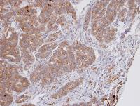 Immunohistochemistry (Formalin/PFA-fixed paraffin-embedded sections) - DPP3 antibody (ab97437)
