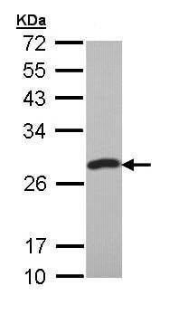 Western blot - PCMT1 antibody (ab97446)