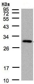 Western blot - CTDSP2 antibody (ab97463)