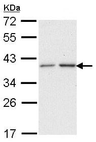Western blot - NAT2 antibody (ab97466)