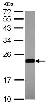 Western blot - Anti-Caveolin-2 antibody (ab97476)