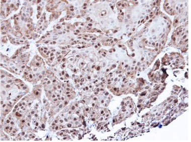 Immunohistochemistry (Formalin/PFA-fixed paraffin-embedded sections) - Annexin A1 antibody (ab97485)