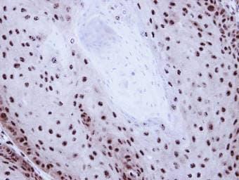 Immunohistochemistry (Formalin/PFA-fixed paraffin-embedded sections) - GABPB2 antibody (ab97489)