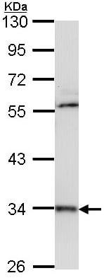 Western blot - Cathepsin D antibody (ab97499)