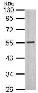 Western blot - MCHR antibody (ab97509)