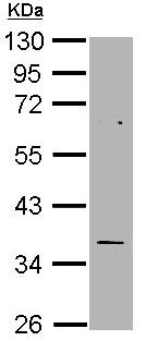 Western blot - Thymidylate Synthase  antibody (ab97510)