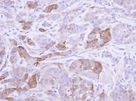 Immunohistochemistry (Formalin/PFA-fixed paraffin-embedded sections) - Villin antibody (ab97512)