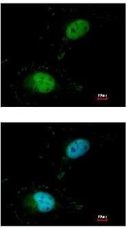 Immunocytochemistry/ Immunofluorescence - SAFB antibody (ab97520)