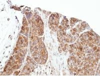 Immunohistochemistry (Formalin/PFA-fixed paraffin-embedded sections) - PRPSAP1 antibody (ab97561)
