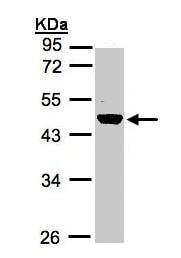 Western blot - Renin antibody (ab97570)
