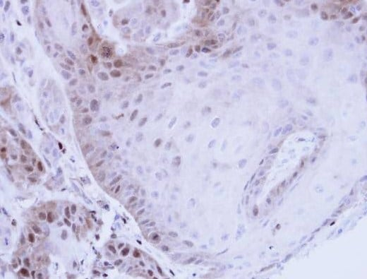 Immunohistochemistry (Formalin/PFA-fixed paraffin-embedded sections) - Proteasome 20S LMP7 antibody (ab97584)