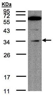 Western blot - Malectin antibody (ab97616)