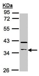 Western blot - RASSF2 antibody (ab97617)