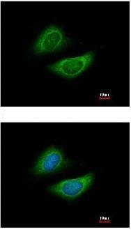 Immunocytochemistry/ Immunofluorescence - GLDC antibody (ab97625)