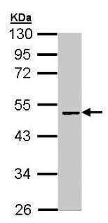 Western blot - Factor X antibody (ab97632)