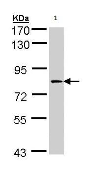 Western blot - Factor XIIIa antibody (ab97636)