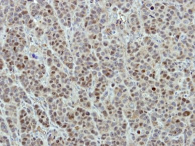 Immunohistochemistry (Formalin/PFA-fixed paraffin-embedded sections) - DDX21 antibody (ab97648)