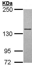 Western blot - DNA Polymerase gamma antibody (ab97661)