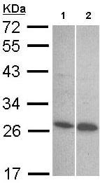Western blot - Endothelin 1 antibody (ab97662)