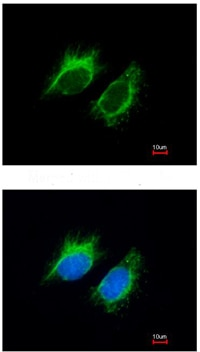 Immunocytochemistry/ Immunofluorescence - Inhibin beta A antibody (ab97705)