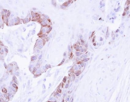 Immunohistochemistry (Formalin/PFA-fixed paraffin-embedded sections) - LIM kinase 2 antibody (ab97766)