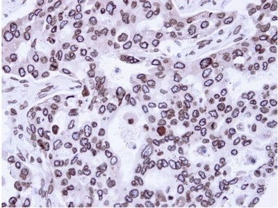 Immunohistochemistry (Formalin/PFA-fixed paraffin-embedded sections) - Lamin A + C antibody (ab97774)