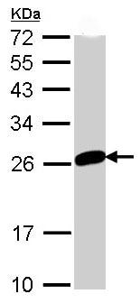 Western blot - Mad2L1 antibody (ab97776)