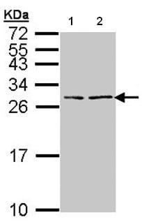 Western blot - BNP antibody (ab97787)