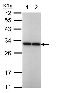 Western blot - PGAM2 antibody (ab97800)