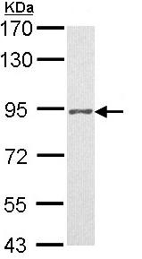 Western blot - Progesterone Receptor antibody (ab97801)