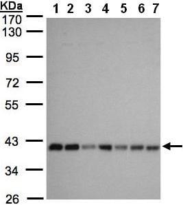 Western blot - SLC25A33 antibody (ab97820)