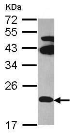 Western blot - FAM18B antibody (ab97830)