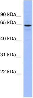 Western blot - SLC34A3 antibody (ab97839)