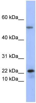 Western blot - Anti-Secretory phospholipase A2 Type V antibody (ab97848)