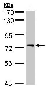 Western blot - Anti-STAM1 antibody (ab97856)