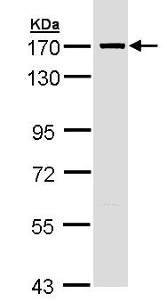 Western blot - SMC1 antibody (ab97857)