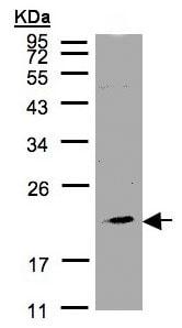 Western blot - KLRC4 antibody (ab97859)