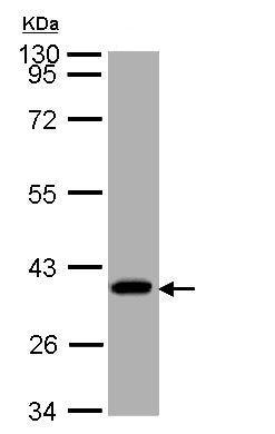 Western blot - SUCLG1 antibody (ab97867)