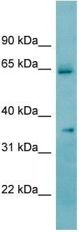 Western blot - ketohexokinase antibody (ab97882)