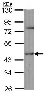 Western blot - Anti-Thyroid Hormone Receptor alpha 2 antibody (ab97887)