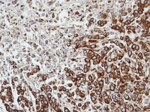 Immunohistochemistry (Formalin/PFA-fixed paraffin-embedded sections) - FPGT antibody (ab97914)